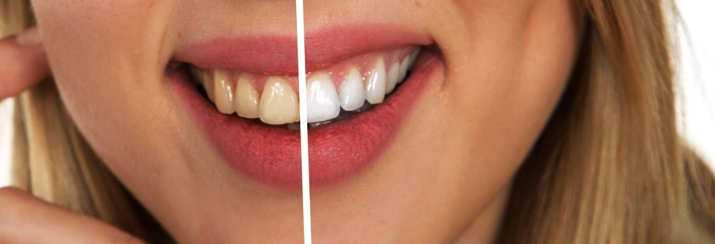 Bright white teeth - before and after